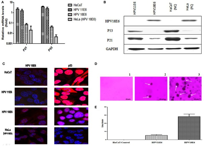 "HPVE6 induces cellular transformation. (A) Quantitation of p21 and p53 mRNA in the adenovirus-HPVE6-infected cells as determined by qRT-PCR. A reduction in the mRNA levels of both genes in HPV18E6-infected HaCaT cells and the positive control (PC) HeLa cells was seen as opposed to the unchanged levels in the HPV11E6 infected cells. (B) Analysis of HPV18E6 (18 kDa), P21 (21 kDa), and P53 (53 kDa) protein levels by western blot analysis showed a marked reduction of both P53 and P21 in the HPV18E6 infected HaCaT cells but only a marginal decrease in the HPV11E6 cells. Uninfected HaCaT cells served as negative control (Nc) and HeLa cells are known to constitutively express the HPV18E6 protein served as PC. (C) The localization of HPV18E6 and P53 in HaCaT cells infected with HPV11E6 and HP18E6 was determined by confocal microscopy. In HPV11E6-expressing cells, p53 was localized primarily in the nucleus with some diffused staining in the cytoplasm, whereas in HPV18E6-expressing cells, p53 was observed at lower levels than either in the control or the HPV11E6 infected cells, with increased cytoplasmic staining. (D,E) Anchorage-independent cell growth as determined by colony formation in soft agar. Cells were plated at a density of 2.5 × 10 3 cells/well and colony formation determined after 21 days as described in the Section "" Materials and Methods ."" Analysis of the colonies was done using the ImageJ software (33), with colonies larger than 150 μm in diameter being scored as positive. Graph shows mean number of colonies ( ± SE) obtained in three independent experiments, with each experiment performed in six replicate wells."