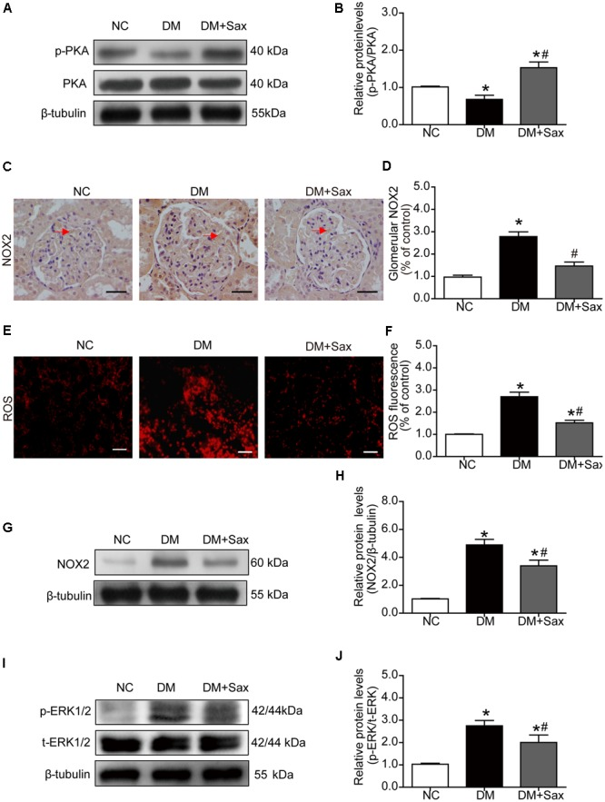 Effects of saxagliptin treatment on PKA phosphorylation and oxidative stress in HFD/STZ-induced diabetic rats. (A) Expression of PKA phosphorylation was assessed by Western blot analysis. (B) Quantification of PKA phosphorylation. (C–F) Immunohistochemistry and dihydroethidium staining for NOX2 expression (original magnification × 400, bars = 50 μm) and ROS production (original magnification × 200, bars = 50 μm) as well as their quantification of expression. (G) Representative Western blot for NOX2 expression in rats. (H) Quantification of NOX2 revealed by Western blot. (I,J) Western blot result for phosphorylation of ERK1/2 as well as its quantification. One-way ANOVA followed by Tukey's test was used to compare the differences between any two of the three groups. The data are presented as the mean ± SD ( n = 5 for each group). ∗ P