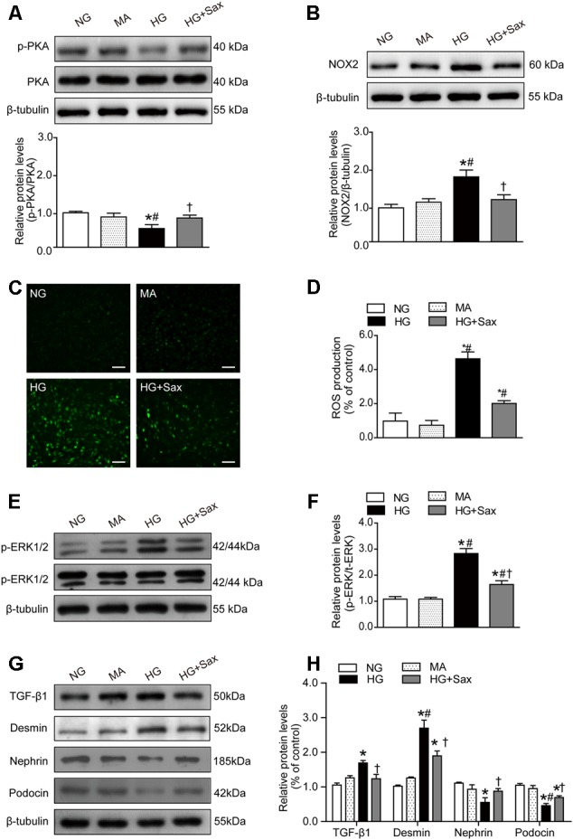 Effects of saxagliptin treatment on oxidative stress and podocyte EMT in cultured podocytes. (A) Protein expression of PKA phosphorylation as well as its quantification respectively in NG as controls, MA group as an isoosmotic control, HG group, and HG group with saxagliptin treatment. (B) NOX2 expression and its quantification in various conditions. (C,D) The amount of ROS production in podocytes detected by DCFH-DA assay (original magnification × 200, bars = 100 μm). (E,F) The protein expression of ERK1/2 phosphorylation assessed by Western blot analysis from cell lysates in different conditions and its quantification. (G,H) Western blot analysis for TGF-β1, desmin, nephrin, and podocin in various conditions and their quantifications. One-way ANOVA followed by Tukey's test was used to compare the differences between any two of the three groups. The data are presented as the mean ± SD ( n = 3–4 for each group, 3 replicates). ∗ P