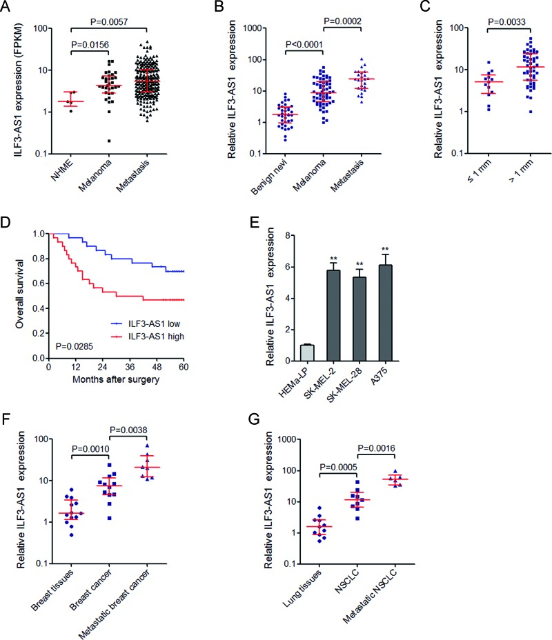 ILF3-AS1 is up-regulated in melanoma tissues and cell lines, and indicates poor prognosis of melanoma patients ( A ) MiTranscriptome expression data for ILF3-AS1 across all available NHMEs ( n =4), primary melanomas ( n =33), and metastatic melanomas ( n =228). ( B ) The expression of ILF3-AS1 in 37 benign nevi, 60 primary melanomas, and 25 metastatic melanomas was measured by qRT-PCR. ( C ) The expression of ILF3-AS1 in melanomas categorized based on tumor thickness at diagnosis. For (A)–(C), data are represented as median with interquartile range. P values were acquired by Mann–Whitney U test. ( D ) Kaplan–Meier survival analysis of the correlation between ILF3-AS1 expression and overall survival of melanoma patients. P values were acquired by log-rank test. ( E ) The expression of ILF3-AS1 in human epidermal melanocytes (HEMa-LP) and melanoma cell lines (SK-MEL-2, SK-MEL-28, and A375) was measured by qRT-PCR. Data are represented as mean ± SD; ** P
