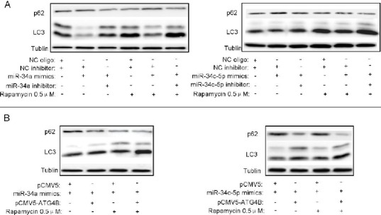 Overexpression of either miR-34a or miR-34c-5p represses rapamycin-triggered autophagy (A, B) HeLa and SKOV3 cells were seeded in 6-well plates and transfected with indicated plasmids and/or RNA oligos. After 12hr, the cells were treated with 0.5μMrapamycin for additional 12hr. Then the protein levels of p62 and LC3 were detected by Western blot, taking Tubulin as a loading control