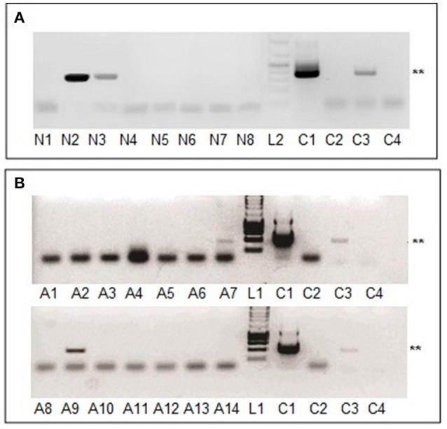 <t>MHV68</t> detection in blood samples from mice infested with naturally infected nymphs or adult ticks. (A) Lanes N1-N7, blood samples of mouse 1-7 exposed to nymphs molted from larvae that had engorged on infected mice; lane N8, blood of mouse infested with uninfected nymphs. (B) Lane A1, blood of mouse infested with uninfected adult ticks; lanes A2-A14, blood samples of 13 mice exposed to adults molted from nymphs that had engorged on infected mice. All blood samples were collected 15 days after tick infestation. Lanes L1, L2, C1–C4 as for Figure 1A . ** Indicates MHV68 ORF50 gene <t>PCR</t> product of 382 base pairs.