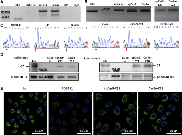 HDR-Induced Correction of the COL7A1 Mutation 6527insC (A) PCR amplification of the COL7A1 -targeting region (1,190 bp) using primers binding exon 76 of COL7A1 and the DP sequence downstream of the 5′ homologous arm revealed the accurate integration of the selection cassette into intron 80 of COL7A1 exclusively in CRISPR/Cas9-treated RDEB patient cells. Negative controls: hKc, RDEB Kc, and DP. (B) PCR amplification of the COL7A1 target region spanning from exon 76 to intron 80 and subsequent BglI digestion assay revealed a digestion pattern of 957 and 83 bp (only upper digestion band shown), showing a partial correction of the mutation in both spCas9- and Cas9n-treated RDEB mixed-cell population and a heterozygous repair of single-cell clones spCas9-C21 and Cas9n-C28. Positive control: hKc; negative control: RDEB Kc. (C) Sequence analysis of the target site confirmed the correction of the mutations in CRISPR/Cas9-treated RDEB Kc, shown by the overlapping peaks, which correspond to guanine (wild-type [WT]) and cytosine (mutation [mut]) (red arrows). (D) Western blot analysis showed increased type VII collagen levels at 290 kDa in total cell lysates and cell culture supernatants taken from both single-cell clones spCas9-C21 and Cas9n-C28 compared with RDEB Kc. Positive control: hKc. Ponceau red and α-actinin staining were used as loading controls. C7: type VII collagen. (E) Immunofluorescence staining of type VII collagen expression revealed increased protein levels in both isolated single-cell clones spCas9-C21 and Cas9n-C28 compared with untreated RDEB Kc. Positive control: hKc. Cell nuclei were stained with DAPI. The scale bar represents 50 μm.