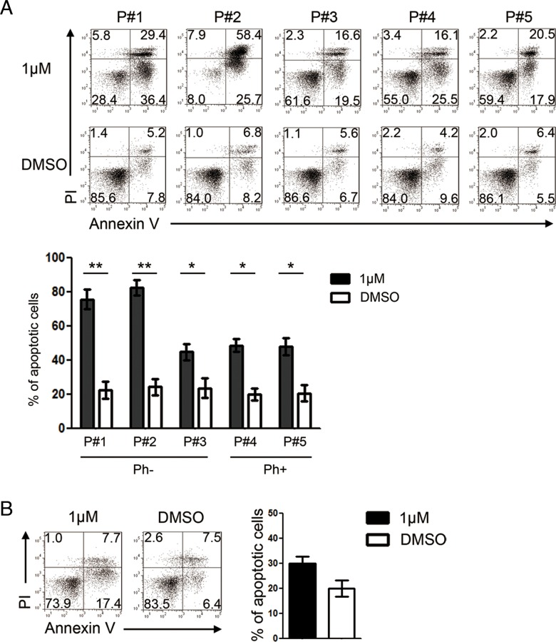 GZD824 induces apoptosis of primary pre-B ALL cells from patients with no toxicity to normal B cells A. GZD824 cytotoxicity in primary pre-B ALL cells: primary pre-B ALL cells of P#1, P#2, and P#3 were from Ph- pre-B ALL, and primary pre-B ALL cells of P#4 and P#5 were from Ph+ pre-B ALL. Up: Representative flow cytometric analysis of primary pre-B ALL cells treated with DMSO or 1μM GZD824. Bottom: Statistical analysis of Annexin V-positive cells in GZD824 treated primary pre-B ALL cells. (P#1, P#2, P#3, P#4 and P#5 are short for patient #1, patient #2, patient #3, patient #4, and patient #5) B. Left: Representative flow cytometric analysis of normal B cells treated with DMSO or 1μM GZD824. Right: Statistical analysis of AnnexinV-positive cells in GZD824 treated primary B cells. Data are shown as the mean ± SEM (error bars) from three independent experiments. Significance values: * P