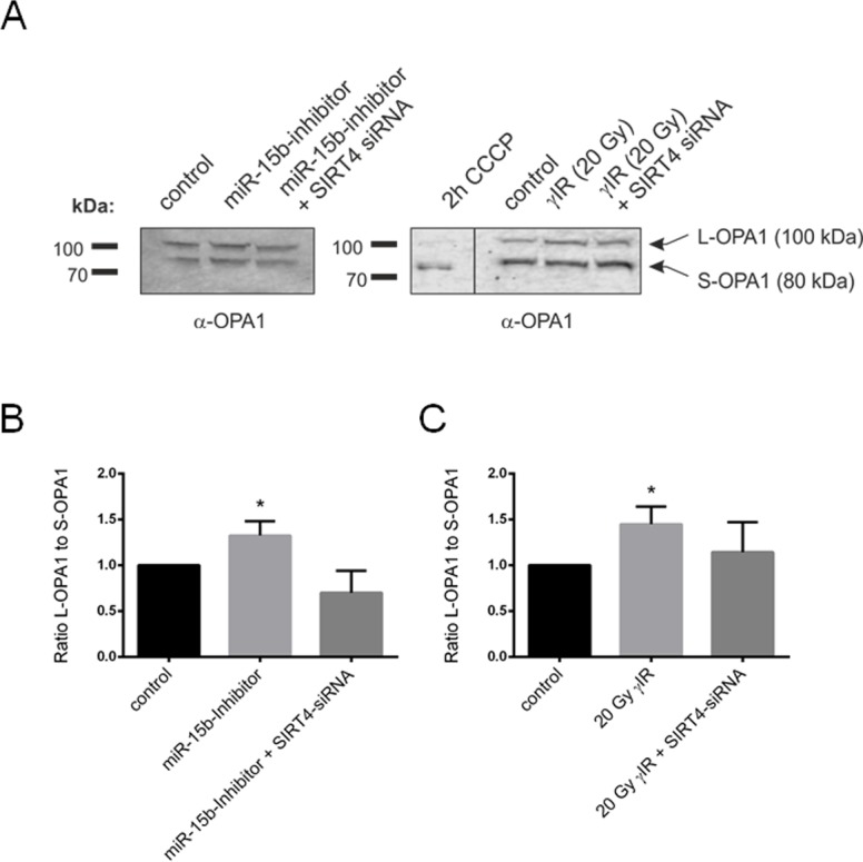 Aging-associated SIRT4 upregulation leads to a shifted L-OPA1 to S-OPA1 ratio in two different fibroblast senescence models Primary human dermal fibroblasts were either transfected with miR-15b inhibitors (or control oligonucleotides) or subjected to γ-irradiation (γIR; 20 Gy) (both in the presence or absence of siRNA duplexes against SIRT4) [ 35 ] followed by analysis of OPA1-L and OPA1-S expression by immunoblotting after four days ( A ) As a control for <t>complete</t> proteolytic processing of L-OPA1 to S-OPA1, fibroblasts were treated with CCCP (10 μM) for two hours. The ratio between the expression levels of L-OPA1 and S-OPA1 was determined by ImageJ-based densitometric analysis in miR-15b inhibitor transfected fibroblasts ( B ) and cells subjected toγIR ( C ). To evaluate statistical significance (compared to control), two-way ANOVA followed by Tukey's test was performed (*p
