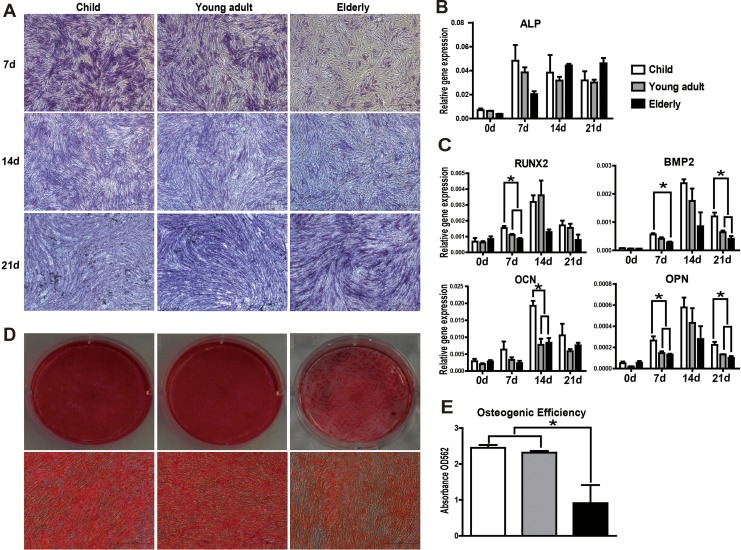 Osteogenic differentiation diminishes with increasing age. (A) Representative pictures of alkaline phosphatase (ALP) staining (20× magnification). (B, C) Messenger RNA (mRNA) expression levels of osteogenic differentiation-related genes ( ALP, RUNX2, BMP2, OCN , and OPN ) were determined in human adipose-derived mesenchymal stem cells (hASCs) over the course of osteogenic differentiation by qRT-PCR. hASCs from aged donors had a diminished response to osteogenic inducers relative to that of young donors. (D) Alizarin Red S staining was used to visualize mineralization. Representative images were shown from 3 separate experiments. (E) Quantitative analysis of Alizarin Red S staining in hASCs cultures at day 14 after osteogenic induction revealed a significant decrease in matrix calcification in the elderly group compared to younger donors. All tests were performed in triplicate, and the data are expressed as the mean ± standard error of mean (SEM). * P
