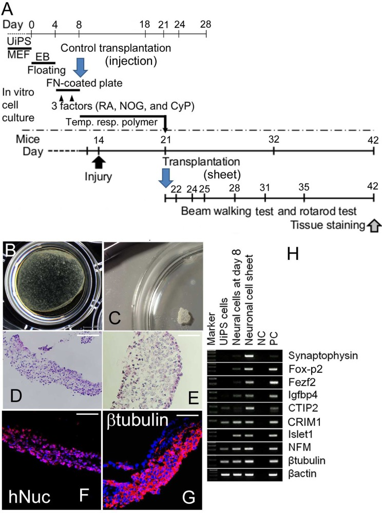 In vitro characterization of neuronal cell sheet derived from human induced pluripotent stem cells (hiPSCs). (A) A schematic representation of neuronal sheet formation from hiPSCs and transplantation. Embryoid bodies were developed from undifferentiated hiPSCs in a floating condition for 4 d. Then the cells were cultured in fibronectin-coated dishes for 4 d during which retinoic acid (RA), noggin (NOG), and cyclopamine (CyP; 3 factors) were introduced twice (on days 5 and 7). In some experiments, sonic hedgehog (SHH) were introduced instead of adding CyP, together with RA and NOG in order to compare the effects of CyP with those of SHH. Thereafter, the cells cultured with RA, NOG, and CyP were harvested on day 8. An aliquot of the cells was cultured in 24-well culture plates for 12 to 16 d and then harvested using <t>trypsin/ethylenediaminetetraacetic</t> acid <t>(EDTA)</t> solution for transplantation. The remaining cells were cultured on temperature-responsive gelation polymer-coated plate (temp. resp. polymer) for 12 to 16 d depending on the neuronal maturation, where they extended axon-like processes, leading to the formation of neuronal cell sheet. The neuronal cell sheet was recovered by lowering the temperature of culture plate below 22°C. Schedule for brain injury, transplantation, and motor function test was reported previously. 10 , 20 , 28 , 29 The cells on day 8 were used as neural stem/progenitor cells for comparison. (B) Stereomicroscopic view of the neuronal cell sheet cultured in a 48-well (diameter 12 mm) culture plate. Right lower part of the sheet detached from the bottom of the plate. (C) Stereomicroscopic view of the sheet in a 10-cm culture dish (diameter 90 mm). (D, E) Hematoxylin and eosin staining of the neuronal cell sheet (D, lower; E, higher magnification). Flow cytometric analysis of the cells in the sheet treated with trypsin/EDTA revealed that more than 75% of the cells expressed human NCAM (data not shown). (F, G) The neuronal cell sh