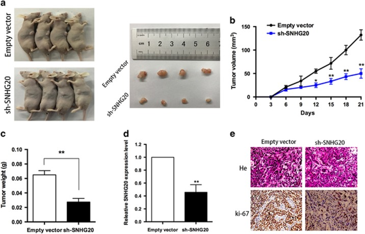 Effect of SNHG20 on NSCLC tumorigenesis in vivo . ( a and b ) Stable SNHG20-knockdown A549 cells were used for in vivo assays. Growth curves of tumors from two groups of mice injected with A549 cells stably transfected with sh-SNHG20 or empty vectors are shown. Tumor volumes were calculated every 3 days. ( c ) Tumor weights from the two groups are represented. ( d ) qRT-PCR was performed to detect the average expression of SNHG20 in xenograft tumors ( n =4). ( e ) Tumors developed from sh-SNHG20-transfected A549 cells showed lower Ki-67 protein levels compared with tumors developed from control cells. Upper: hematoxylin and eosin staining; lower: immunohistochemical staining. * P