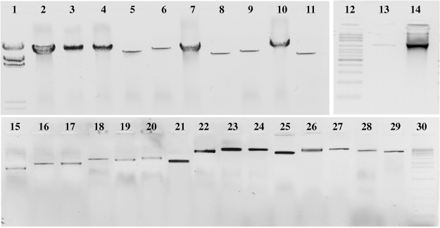 Results of 27 <t>LR-PCR</t> amplifications for one patient. Line 1 - ladder λ <t>DNA</t> Hind III; 2 - GABRA1 (17533 bp), 3 - ABCB1 (16809 bp); 4 - ABCB1 (17000 bp); 5 - NQO1 (11767 bp); 6 - ABCB1 (14483 bp); 7- ABCB1 (15827 bp); 8 - GABRA1 (10134 bp); 9 - ALB (11245 bp); 10 - CYP2C9 (17670 bp); 11 - CYP2C9 (10723 bp); 12 – ladder 100 bp; 13 - UGT1A9 (972 bp); 14 - ADRA1A (1183 bp); 15 - UGT1A9 (2303 bp); 16 - SULT1A1 (2760 bp); 17 - CYP2C9 (2761 bp); 18 - CYP2B6 (3312 bp); 19 - SULT1A1 (3219 bp); 20 - ABCB1 (3518 bp); 21 - CYP2B6 (3113 bp); 22 - ADRA1A (6818 bp); 23 - CYP2B6 (9280 bp); 24 - GABRA1 (9190 bp); 25 - ABCB1 (5967 bp); 26 - ALB (8571 bp); 27 - NQO1 (8998 bp); 28 - UGT1A9 (6700 bp); 29 - SULT1A1 (6497 bp); 30 – ladder 1 kbp;. Lines 1–11, 0.5% agarose gel; lines 12–14, 1.5% agarose gel; lines 15–30, 1.0% agarose gel. The gel images were obtained by trimming and colour adjusting of the full-length gels in the IrfanView 4.44 program.