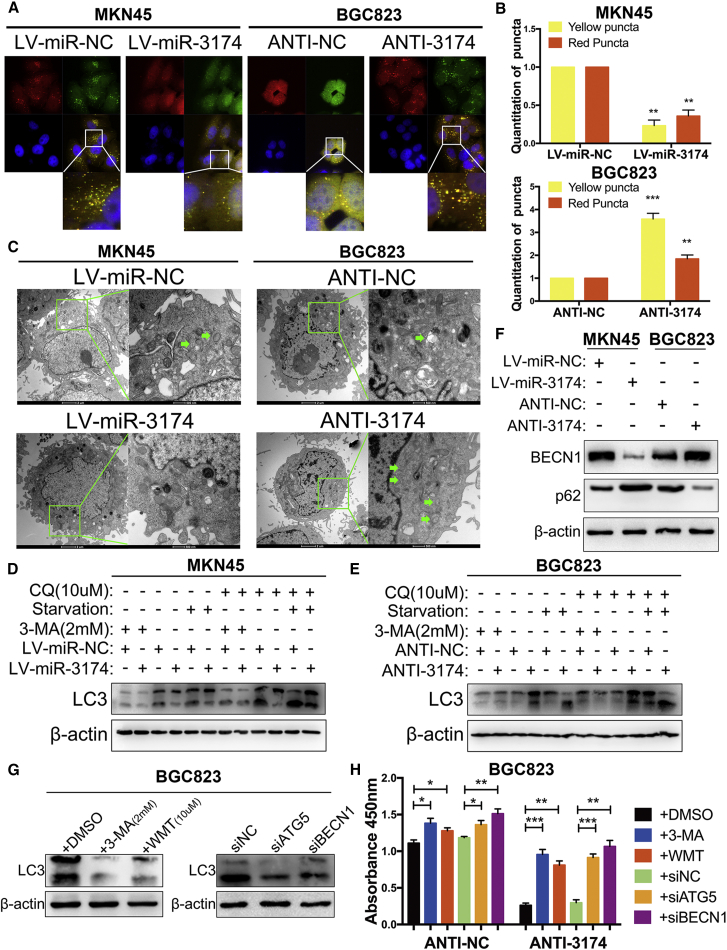 miR-3174 Suppresses Cellular Autophagy and Inhibits Autophagic Cell Death in GC Cells (A) Cells infected with <t>lentivirus</t> particles for expression of GFP-mRFP-LC3 were plated into a 35-mm confocal culture dish, and cellular puncta were observed using confocal microscopy (63× objective magnification; scale bar, 20 μm) after 48 hr. The areas enclosed in white squares were further amplified. (B) Yellow and red puncta were counted as mentioned in the Materials and Methods . (C) Transmission electron microscopy (TEM) detection of autophagic microstructures in cells. The green arrows refer to cellular autophagosome that has a double layer structure or autolysosome generated by fusion of autophagosome with lysosome. The areas enclosed within green squares were further amplified with TEM (2,500× and 8,800× magnification; scale bar, 2 μm and 500 nm). (D and E) LC3-II protein levels were calculated in MKN45 (D) and BGC823 (E) cells with or without chloroquine (CQ, 10 μM for 2 hr) or 3-methyladenine (3-MA, 2 mM for 24 hr) treatment or nutritional deprivation for 48 hr. The upper band of LC3, LC3-I; the lower band, LC3-II. (F) The protein levels of BECN1 and SQSTM1/p62 were assessed with western blotting. (G) LC3-II levels were detected after transfected BGC823 cells with siATG5, siBECN1, or siNC and treated cells with 3-methyladenine (3-MA, 2 mM for 24 hr), Wortmannin (WMT, 10 μM for 24 hr), or DMSO. (H) Cell viability was quantified in BGC823 cells with the same treatment and with or without miR-3174 inhibition. β-actin was used as an internal control. Graph represents mean ± SEM; *p