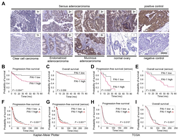 PAI-1 expression correlates with poor prognosis in patients with ovarian cancer Immunohistochemical staining of PAI-1 in different malignant ovarian tissue sections (A). Representative areas of three different ovarian cancers scored as 1, 2, and 3, and one normal ovarian tissue sample scored as 0. Sections from breast cancer are shown as positive control for PAI-1 staining, and as negative control stained with nonimmune sera. Bar, 100 μm. Kaplan-Meier plot showing progression-free survival (PFS) (B) and overall survival (OS) (C) of patients with ovarian cancer treated at Gifu University Hospital and Osaka University Hospital (n = 154) stratified by PAI-1 expression level. Kaplan-Meier plot showing PFS (D) and OS (E) of patients with serous adenocarcinoma (n = 54) stratified by PAI-1 expression level. Kaplan-Meier plot showing PFS of patients with ovarian cancer (n = 1307) (F) and PFS of patients with serous ovarian cancer (n = 1144) (G) stratified by PAI-1 gene expression. Patients are split by the threshold of lower tertile according to the microarray expression data for the probe representing SERPINE 1 (202628_s_at). Kaplan-Meier plot showing PFS (H) (n = 395) and OS (I) (n = 485) of patients with stage II-IV high-grade serous ovarian cancer in TCGA database stratified by PAI-1 mRNA expression.