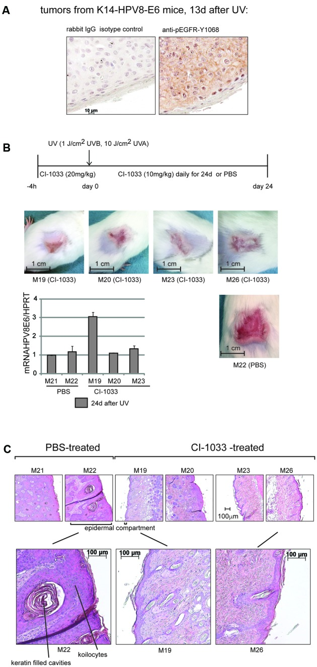 Inhibition of the RTK-activity of the EGFR by the pan-ErbB-inhibitor Canertinib (CI-1033) suppresses UV-induced papillomatosis in K14-HPV8E6 transgenic mice. (A) Immunohistochemical staining of paraffin embedded sections obtained from skin of K14-HPV8E6 transgenic mice 13 days after UV-exposure with the anti-pEGFR-Y1068 or rabbit IgG isotype control (magnification 1:400). (B) Transgenic mice obtained either Canertinib (CI-1033) (20 mg/kg weight) or the same volume of PBS 4 h prior UV-irradiation followed by applications of Canertinib once daily at a dose of 10 mg/kg weight or 150 μl PBS for 24 days, as given in the time line. The pictures represent examples of the lesions from four mice treated with CI-1033 (M19, 20, 23, and M26) and from one control mouse which obtained PBS (M22). The graph beneath shows the quantification of RT-PCR results with RNA isolated from two PBS and three Canertinib-treated animals to demonstrate the expression of HPV8E6. (C) Histology with H/E staining of skin section obtained from two PBS-control (M21 and M22) and four Canertinib (CI-1033)-treated animals (M19, M20, M23, and M26) 24 days after UV-irradiation.