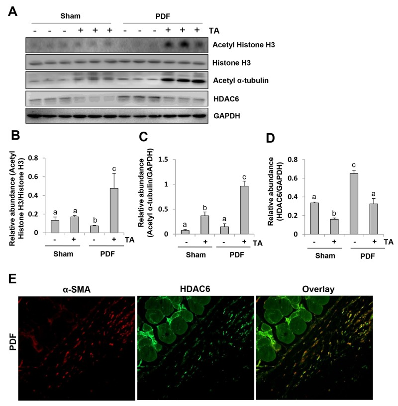Inhibition of HDAC6 reduces histone H3 acetylation in the peritoneum of mice after exposure to high glucose dialysate Peritoneal membrane was collected at 28 days after PDF injection with or without administration of TA (70 mg/kg, daily). (A) The peritoneum was taken for immunoblot analysis of acetyl histone H3, histone H3, acetyl α-tubulin, HDAC6 or GAPDH; the representative results with three samples are shown. (B) Expression level of acetyl-histone H3 was quantified by densitometry and normalized with total histone H3. (C and D) Expression levels of acetyl α-tubulin (C) or HDAC6 (D) were quantified by densitometry and normalized with GAPDH. (E) Photomicrographs illustrate co-staining of α-SMA and HDAC6 in the peritoneum collected 28 days after 4.25%PDF injection (original magnification, ×200). Data are represented as the means±SD (n=6). Means with different letters (a-c) are significantly different from one another (P