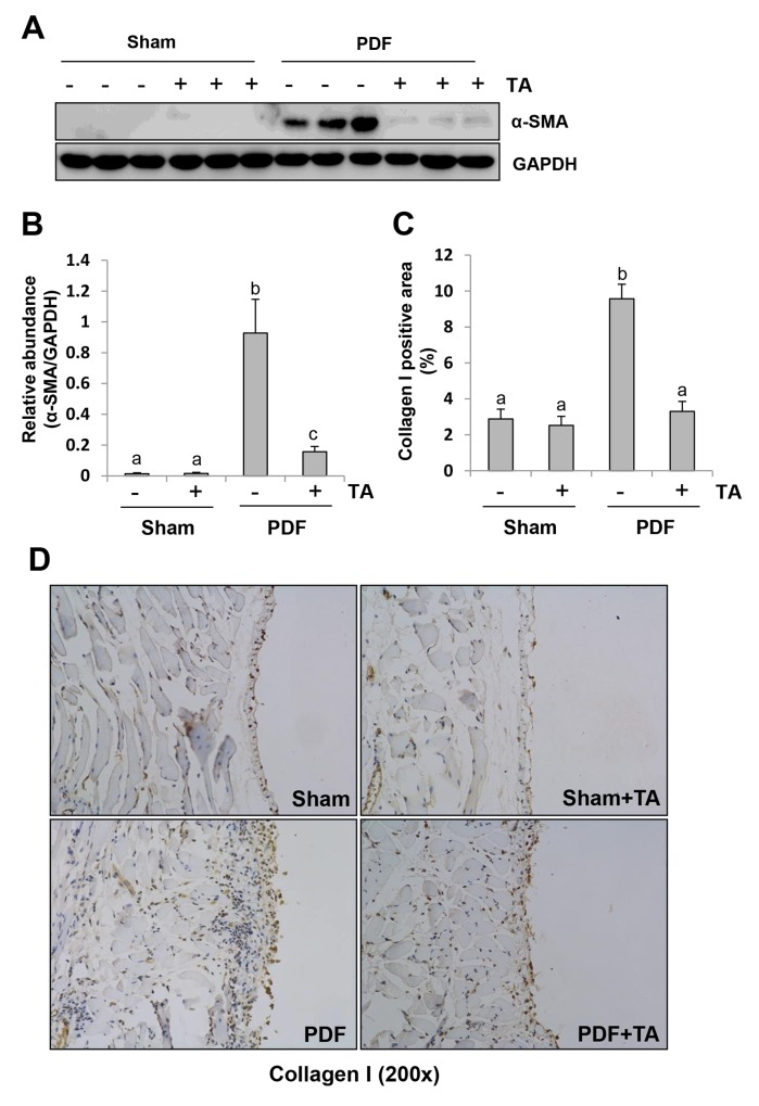 Inhibition of HDAC6 reduces fibroblast activation and ECM protein deposition in the peritoneum after exposure to high glucose dialysate Peritoneal membrane was collected at 28 days after PDF injection with or without administration of TA (70 mg/kg, daily). (A) The peritoneal tissue lysates were subjected to immunoblot analysis with specific antibodies against α-SMA or GAPDH. (B) Expression levels of α-SMA were quantified by densitometry and normalized with GAPDH. (C) The percentage of collagen I-positive areas was calculated from ten random fields of six mice peritoneal samples. (D) Photomicrographs illustrate immunohistochemical staining of collagen I in the submesothelial compact zone (original magnification, ×200). Data are represented as the means±SD (n=6). Means with different letters are significantly different from one another (P