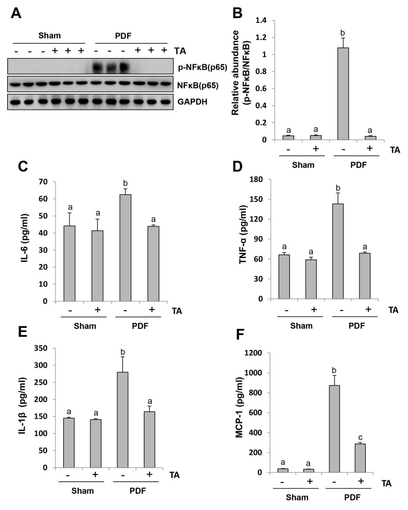 Inhibition of HDAC6 blocks activation of NF-κB signaling pathway and suppresses release of multiple inflammatory cytokines and chemokines Peritoneal membrane was collected at 28 days after PDF injection with or without administration of TA (70 mg/kg, daily). (A) The peritoneal tissue lysates were subjected to immunoblot analysis with specific antibodies against p-NF-κB, NF-κB or GAPDH. (B) Expression levels of p-NF-κB were quantified by densitometry and normalized with total NF-κB. Graphs show the expression levels of IL-6 (C) , TNF-α (D) , IL-1β (E) , and MCP-1 (F) by ELISA. Data are represented as the means±SD (n=6). Means with different letters are significantly different from one another (P