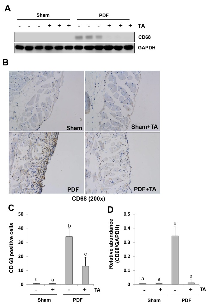 Inhibition of HDAC6 attenuates macrophage infiltration in the peritoneum induced by high glucose PDF Peritoneal membrane was collected at 28 days after PDF injection with or without administration of TA (70 mg/kg, daily). (A) The peritoneal tissue lysates were subjected to immunoblot analysis with specific antibodies against CD68 or GAPDH. (B) Photomicrographs (original magnification, ×200) illustrate CD68 staining of the peritoneal tissues. (C) The percentage of CD68-positive cells was calculated from ten random fields of six mice peritoneal samples. (D) Expression level of CD68 was quantified by densitometry and normalized with GAPDH. Data are represented as the means±SD (n=6). Means with different letters are significantly different from one another (P