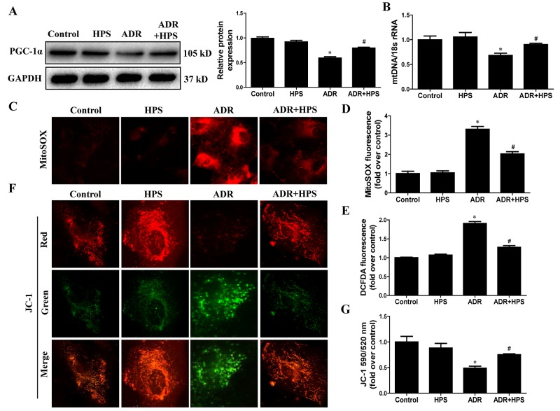 Effect of hyperoside on adriamycin-induced mitochondrial dysfunction in vitro Podocytes were pre-treated with hyperoside (50μmol/L) for 1 h followed by co-incubation with ADR (1μg/ml) for further 12 h. (A) Western blots for PGC-1α expression. Left: representative immunoblots. Right: densitometric analysis. (B) mtDNA copy number. (C) Representative images of podocytes stained with MitoSOX. (D) Quantitation of MitoSOX by flow cytometry. (E) Podocytes were stained with DCFDA and the DCF fluorescence intensities were analyzed by flow cytometry. (F) Representative images of podocytes stained with JC-1. (G) Quantitation of mitochondrial membrane potential changes by flow cytometry. Values are means ± SEM from three independent experiments. * P