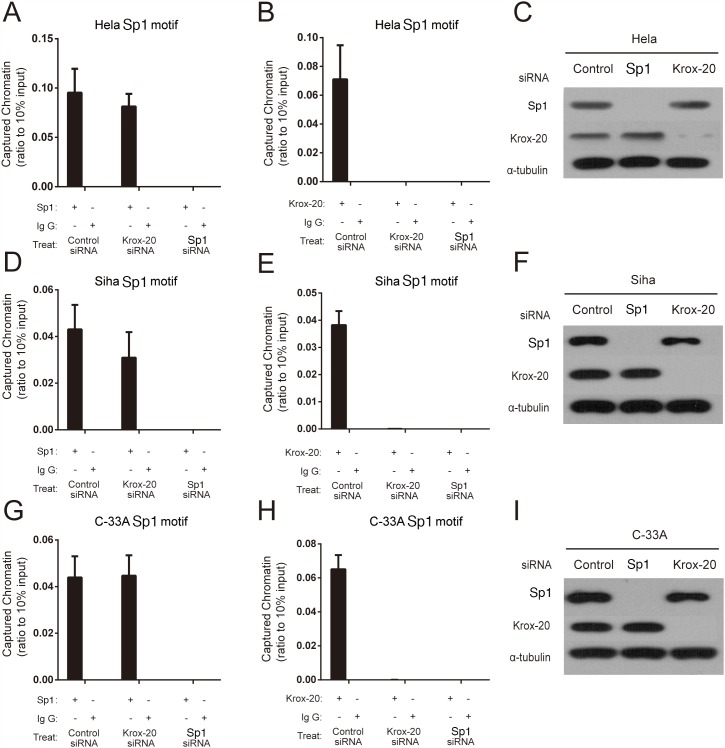 Sp1 regulated the transcription of the XRCC1 by recruiting Krox-20 to the rs3231245 mutation region (A, B, D, E, G and H) Binding affinity of Sp1 and Krox-20 to chromatin. (C, F and I) Confirmation of protein expression of Sp1 and Krox-20 in siRNA-transfected cells by Western blot analysis.