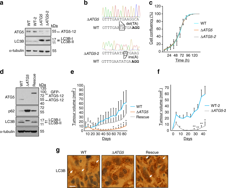 Autophagy promotes tumorigenesis in vivo. a A549 cells deficient in ATG5 protein expression were generated by CRISPR/Cas9-mediated genome editing. Each of the two wild-type control clones (WT and WT-2) and Δ ATG5 clones (Δ ATG5 and Δ ATG5 -2) were immunoblotted for the indicated proteins. b Genomic DNA from A549 Δ ATG5 and Δ ATG5 -2 cells was PCR amplified. The amplicon encompassed the sequence to which Cas9 had been targeted (PAM in bold ) and different indels were identified in both clones via Sanger sequencing. c A549 WT and Δ ATG5 cells were plated at low confluency for time-lapse phase-contrast videomicroscopy using an Incucyte microscope and cell proliferation was monitored by automated confluency analysis at set intervals post plating (means, n = 9 wells, ±S.D.). d A pooled derivative of Δ ATG5 cells was generated by stable transduction with GFP-ATG5 retrovirus (rescue). The indicated cell lines were immunoblotted as shown. e WT, Δ ATG5 and rescue cells were subcutaneously injected into immunocompromised mice and tumour volume was measured longitudinally (means, n = 10 flanks, ±S.E.M., * P