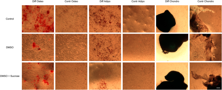 Differentiation potential of cryopreserved MSCs within PRP-SF bioscaffolds. Microscopic images of 3 weeks MSCs released from thawed PRP-SF bioscaffolds and differentiated into osteocytes, adypocites or chondrocytes. Note: Control: non cryopreserved; DMSO: DMSO 10%; Sucrose: Sucrose 0,2 M; DMSO + Sucrose: DMSO 10% + Sucrose 0,2 M. Osteo: osteogenic differentiation; Contr Osteo: non osteogenic differentiation (control); Adipo: adipogenic differentiation; Contr Osteo: non adipogenic differentiation (control); Chondro: chondrogenic differentiation; Contr Chondro: non chonrogenic differentiation (control). Scale bar: 100 µm.