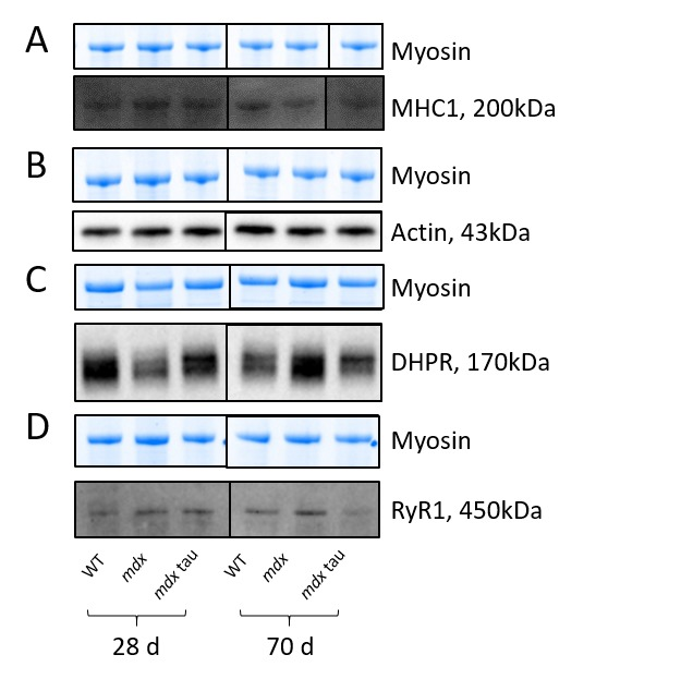 Shown for each panel is the myosin from the Stain Free gel, indicative of total protein (top) and the representative Western blot protein (bottom) for MHC1 (A, black line indicates non-contiguous lanes from the same gel), actin (B), DHPR (C) and RyR1 (D) in 28 d and 70 d WT, mdx and mdx tau mice.