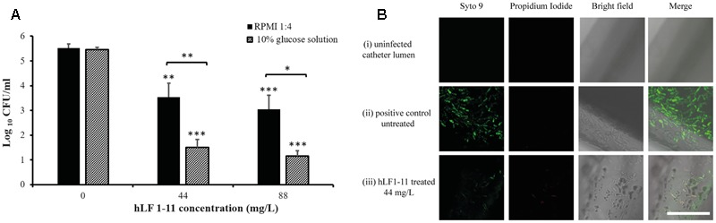 (A) Reduction of biofilm formation in catheters co-incubated for 24 h at 37°C with two different concentrations of hLF 1-11, compared with the untreated control. Catheters were incubated in four-fold diluted RPMI or in a 10% glucose solution. Data are expressed as means of three independent experiments ± SEM. ∗ P ≤ 0.05; ∗∗ P ≤ 0.01; ∗∗∗ P ≤ 0.001. (B) CLSM images of (i) un-colonized catheter lumen, and catheters co-incubated with strain CP 7 in the absence (ii) or presence (iii) of 44 mg/L hLF 1-11 for 24 h at 37°C in four-fold diluted RPMI. Bars denote 50 μm.