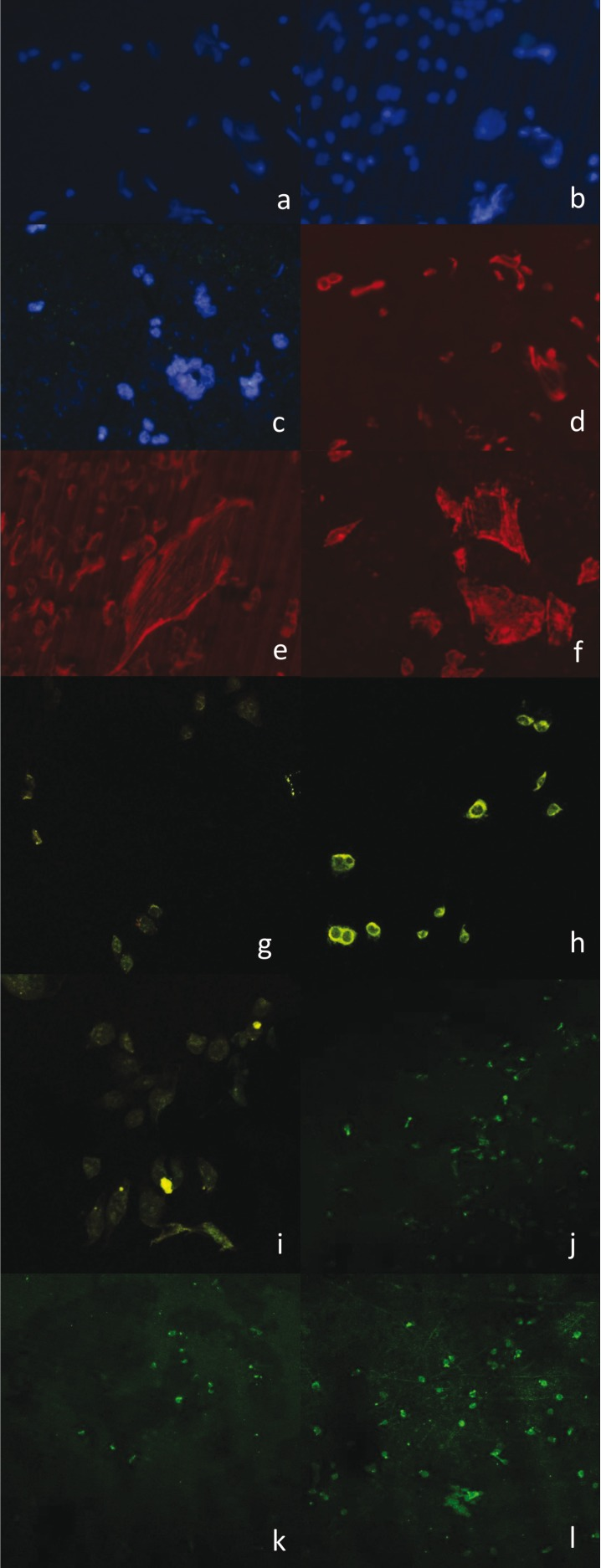 Fluorescence images: (a) Visualization of the nuclei of viable osteoblasts from the Control Group. Obtained with the Olympus <t>BX61®</t> fluorescence light microscope (Olympus Corporation, Shinjuku, Tokyo, Japan) and AxioScope® camera (Carl Zeiss®, OPM, Pico Dental, Germany) with a 20x objective. (b) Visualization of viable osteoblast nuclei of cultures on a machined surface. Images obtained with the Olympus BX61® fluorescence light microscope (Olympus Corporation, Shinjuku, Tokyo, Japan) and AxioScope® camera (Carl Zeiss®, OPM, Pico Dental, Germany) with a 20x objective. (c) Visualization of viable osteoblast nuclei of cultures on an Osseotite® surface. Images obtained with the Olympus BX61® fluorescence light microscope (Olympus Corporation, Shinjuku, Tokyo, Japan) and AxioScope® camera (Carl Zeiss®, OPM, Pico Dental, Germany) with a 20x objective. (d) Visualization of osteoblast cytoskeleton using rhodamine stain of cultured osteoblasts belonging to the Control Group. Images obtained with the Olympus BX61® fluorescence light microscope (Olympus Corporation, Shinjuku, Tokyo, Japan) and AxioScope® camera (Carl Zeiss®, OPM, Pico Dental, Germany) with a 20x objective. (e) Visualization of osteoblast cytoskeleton using rhodamine stain of osteoblasts cultured on a machined surface. Images obtained with the Olympus BX61® fluorescence light microscope (Olympus Corporation, Shinjuku, Tokyo, Japan) and AxioScope® camera (Carl Zeiss®, OPM, Pico Dental, Germany) with a 20x objective. (f) Visualization of osteoblast cytoskeleton using rhodamine stain of osteoblasts cultured on an Osseotite® surface. Images obtained with the Olympus BX61® fluorescence light microscope (Olympus Corporation, Shinjuku, Tokyo, Japan) and AxioScope® camera (Carl Zeiss®, OPM, Pico Dental, Germany) with a 20x objective. (g) Visualization of the Control Group cultured NHOst mitochondria with JC-1 visualized using the LEICA TCS-SP2 laser scanning confocal microscope (Leica Microsystems, Wetzlar, Germa