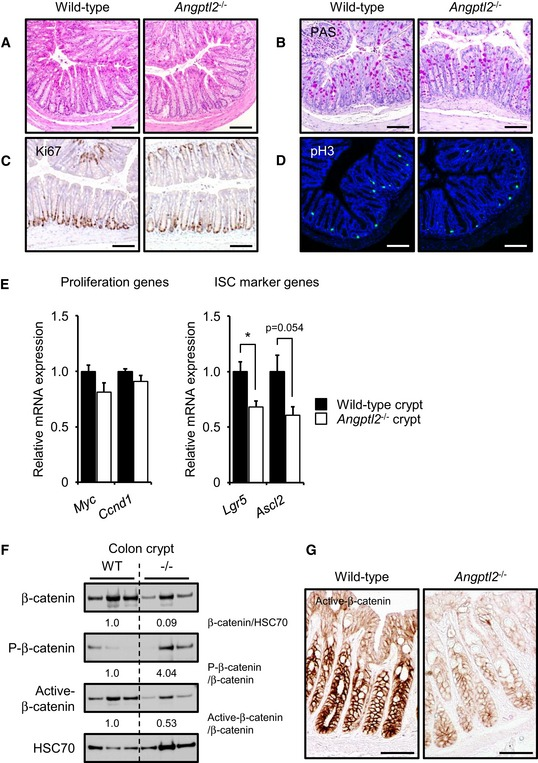 The Angptl2 −/− mouse colon shows decreased β‐catenin signaling Representative images of H E (A)‐ and PAS (B)‐stained colon sections from wild‐type and Angptl2 −/− mice. Scale bar = 100 μm. Representative images of colon crypts as assessed by Ki67 (C) and pH3 (D) staining. Scale bar = 100 μm. mRNA levels of indicated proliferation and ISC markers in isolated crypts from wild‐type ( n = 4) and Angptl2 −/− ( n = 4) mice based on qRT–PCR analysis. Data are represented as means ± SEM. * P