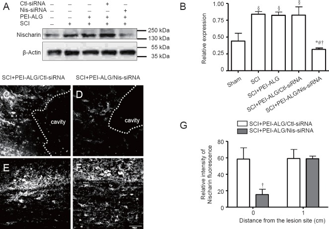 Nischarin protein expression in the injured spinal cord of rats. (A, B) Western blot assay shows markedly upregulated nischarin protein expression in SCI, PEI-ALG, and PEI-ALG/Ctl-siRNA groups compared with the sham group (§ P