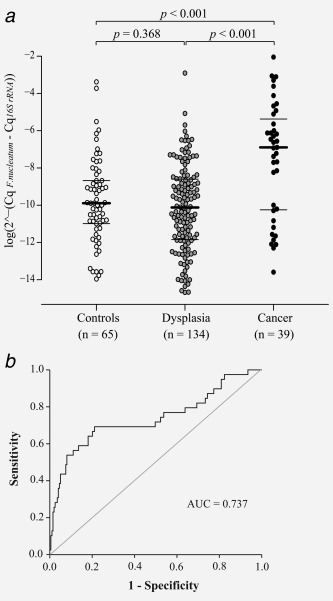 Increased levels of F. nucleatum are detected in stool of CRC patients. ( a ) A Beeswarm Boxplot is used to illustrate the relative levels of F. nucleatum in stool of control patients, and patients diagnosed with dysplasia or cancer. Horisontal lines indicate median (in bold) and quartiles. ( b ) An ROC curve displaying the specificity and the sensitivity for the F. nucleatum assay. The ROC curve was calculated using the variable for F. nucleatum and cancer/no cancer. The level of F. nucleatum in each sample is given as a relative quantification with the total microbial 16S rRNA gene DNA in each sample as reference 2 ∧ (−ΔCq) , ΔCq = Cq F. nucleatum − Cq16 S rRNA gene ).