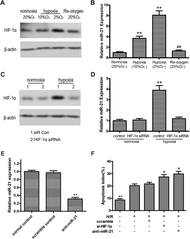 <t>HIF-1α</t> and miR-21 were induced by hypoxia and play an anti-apoptosis role in intestinal epithelial cells. ( A ) Western blot analysis of HIF-1α expression in response to normoxia, hypoxia, and reoxygenation. ( B ) qRT-PCR analysis of miR-21 expression using U6 snRNA as an internal control. ( C ) Western blot assessment of HIF-1α expression in cells transfected with siRNA against HIF-1α or scrambled control. β-actin served as a loading control. Unprocessed original scans and of blots are shown in Supplementary Fig. S1 . ( D ) qRT-PCR analysis of miR-21 expression. U6 snRNA served as an internal control. ** P