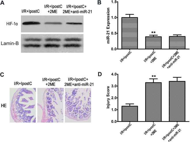 HIF-1α inhibition downregulated miR-21 and abolished the protective effects of IPostC. ( A ) Western blot analysis of HIF-1α expression in the nucleus. ( B ) qRT-PCR analysis of miR-21 expression using U6 snRNA as an internal control. ( C and D ) Representative photomicrographs of HE-stained intestinal sections and intestinal injury score. Magnification × 200. Unprocessed original scans and of blots are shown in Supplementary Fig. S1 . Data are expressed as mean ± SD, n = 6. ** P