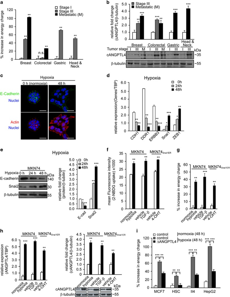 Increased cellular metabolic activity is essential for epithelial–mesenchymal transition. ( a ) Percentage increase in energy charge in breast, colorectal, gastric and head and neck tissues at various tumor stages. Comparison was made against respective stage I samples. ( b ) Immunoblot analysis of cANGPTL4 expression in patient biopsies at various tumor stages. ( c ) Immunofluorescence staining of E-cadherin (green) in hypoxia cells at the indicated time intervals. Cells were counterstained with DAPI (blue) for nuclei and phalloidin (red) for actin cytoskeleton. Scale bar=40 μm. ( d ) Relative mRNA expression of EMT markers (CDH1, DDR1, ERBB3, Snai1 and ZEB1) in hypoxia-exposed MKN74 cells at indicated time points. ( e ) Immunoblot analysis of E-cadherin and Snai2 expression in hypoxia-exposed MKN74 cells at indicated time points. ( f ) Fluorescence-activated cell sorting (FACS) analysis of the fluorescent glucose analog 2-NBDG uptake and ( g ) percentage increase in energy charge in MKN74 and MKN74 Snai1ER cells after the indicated treatments. ( h ) Relative mRNA expression (left panel) and immunoblot analysis (right panel) of ANGPTL4 in MKN74 and MKN74 Snai1ER cells after the indicated treatments. ( i ) Percentage increase in energy change in MCF7, HSC, II4 and HepG2 cells after indicated treatments. For immunoblot analyses, representative immunoblot pictures and densitometric quantification plots are shown. Loading controls for the immunoblot analyses were from the same sample. For qPCR, TBP was used as reference gene. Data are represented as mean±s.d. from at least three independent experiments. * P