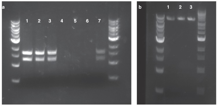 Confirmation of HGT from replicating and homology plasmids. ( a ) plasmid DNA isolated with a standard <t>miniprep</t> kit and digested using SspI. Lanes 1–3: Kanamycin-resistant Acinetobacter clones resulting from HGT of pBAV1k. Lanes 4–6: Kanamycin-resistant Acinetobacter clones resulting from HGT of pRC03+homology. Lane 7: E. coli carrying pBAV1k. ( b ) inverse PCR with primers located in the kan gene using genomic DNA isolated from kanamycin-resistant Acinetobacter clones resulting from HGT of pRC03H.