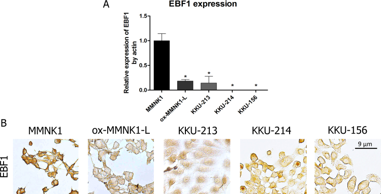 (A) Relative mRNA expression levels of EBF1 was measured by real-time PCR and adjusted by β-actin mRNA expression in MMNK1, ox-MMNK1-L and CCA cell lines. The symbol asterisk (*) indicates statistical significance at P