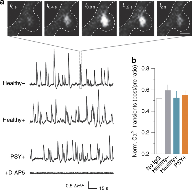 NMDAR-Ab from Healthy + subjects and PSY + patients do not affect NMDAR-mediated Ca 2+ transients in spines of hippocampal neurons. a Representative time-lapse images of a spontaneous NMDAR-mediated Ca 2+ transient in basal condition (in the presence of nifedipine 5 µM and bicuculline 5 µM). Scale bar, 2 µm. Lower panel, representative examples of NMDAR-mediated Ca 2+ transients recorded in spines (expressed as Δ F / F ratio) exposed to purified IgG from Healthy −, Healthy +, or PSY + individuals. Note that all events were abolished by the NMDAR-competitive antagonist D-AP5 (50 µM). b Normalized frequency (ratio of Ca 2+ transients frequency post-application of NMDAR-Ab relative to the baseline acquisition) of spontaneous NMDAR-mediated Ca 2+ transients in control condition with no IgG ( n = 38 spines, N = 4 neurons) or in the presence of Healthy − purified IgG ( n = 38, N = 5), Healthy + NMDAR-Ab ( n = 68, N = 10), or PSY + NMDAR-Ab ( n = 131, N = 15). Data are expressed as mean ± SEM. One out of one Healthy − , three out of three Healthy + , and four out of nine PSY + were used and pooled for comparisons. P > 0.05, Krukal–Wallis test