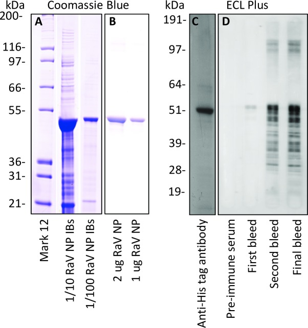 Expression and purification of RABV NP and characterization of antiserum. RABV NP inclusion bodies (IBs) (A) and gel-purified RABV NP (B) were resolved by SDS PAGE and stained with Coomassie blue. All lanes of gels stained with Coomassie blue were loaded with 10 μl of RABV NP in the dilutions or amounts indicated. Recombinant, gel-eluted His-tagged RABV NP was identified by immunoblotting with anti-His antibody (1:1,000) followed by sheep anti-mouse-HRP (1:2,000) (C). Sera from a pre- and post-immunized rabbit were diluted 1:10,000 and assessed for anti-RABV NP polyclonal antibody production by immunoblotting (D). All gels used for immunoblotting were loaded with 10 ng of RABV NP per well. Molecular mass markers were Mark 12 or See Blue Plus 2 (Invitrogen).