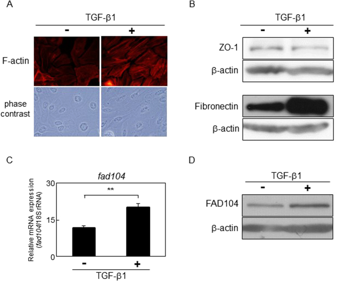 FAD104 expression is elevated during TGF-β–mediated EMT in HeLa cells. HeLa cells were treated with 5 ng/mL TGF-β1 or vehicle for 72 h. ( A ) Morphological changes of HeLa cells after treatment with TGF-β1. F-actin was visualized by TRITC-conjugated phalloidin. ( B ) The expression of the epithelial marker ZO-1 and mesenchymal marker Fibronectin after treatment with TGF-β1. Whole-cell lysates were subjected to Western blot analysis and β-actin was used as a loading control. ( C ) qPCR analysis of fad104 expression in HeLa cells treated with TGF-β1. The expression level of fad104 was normalized with 18 S rRNA expression. Each column represents the mean with standard deviation (n = 3). Significant differences are indicated as ** p
