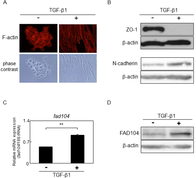 FAD104 expression is elevated during TGF-β–mediated EMT in NMuMG cells. NMuMG cells were treated with 5 ng/mL TGF-β1 or vehicle for 48 h. ( A ) Morphological changes in NMuMG cells after treatment with TGF-β1. F-actin was visualized by TRITC-conjugated phalloidin. ( B ) Expression of the epithelial marker ZO-1 and mesenchymal marker N-cadherin after treatment with TGF-β1. Whole-cell lysates were subjected to Western blot analysis and β-actin was used as a loading control. ( C ) qPCR analysis of fad104 expression in NMuMG cells treated with TGF-β1. The expression level of fad104 was normalized with 18 S rRNA expression. Each column represents the mean with standard deviation (n = 3). Significant differences are indicated as ** p