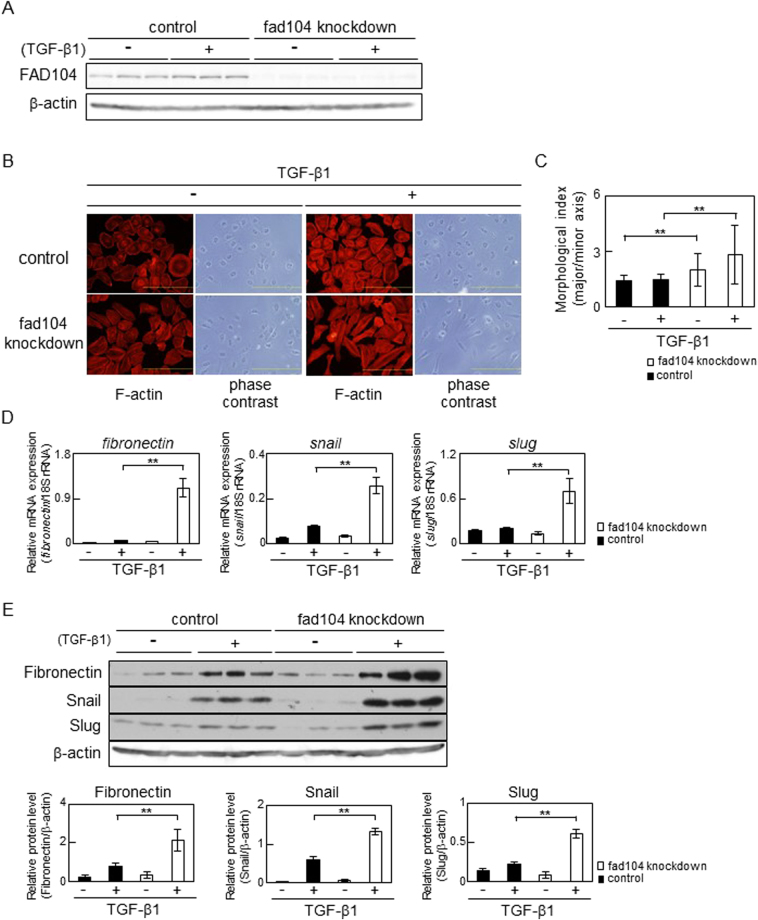 Fad104 knockdown enhances TGF-β–mediated EMT in HeLa cells. ( A ) Knockdown efficiency of fad104 in HeLa cells. HeLa cells were transfected with siRNA targeting fad104 (sifad104-A) and treated with 5 ng/mL TGF-β1. Luciferase siRNA was used as a control. β-Actin expression was used as a loading control. ( B ) Morphological changes in HeLa cells transfected with fad104 siRNA. Cells were treated with 5 ng/mL TGF-β1 for 72 h. F-actin was visualized by TRITC-conjugated phalloidin. Scale bars represent 100 μm. ( C ) Quantitative analysis of cell morphology of HeLa cells in ( B ). The lengths of the major and minor cell axes were measured using NIH-Image software. The ratios of the major to minor axes of cells were used to determine the degree of elongated cell morphology. For each experiment, over 20 cells in each condition were measured. Each column represents the mean with standard deviation. ( D ) qPCR analysis of fibronectin, snail , and slug expression in fad104 knockdown cells. Cells were treated with 1 ng/mL TGF-β1 for 72 h. Expression levels of fibronectin, snail , and slug were normalized with 18 S rRNA expression. Each column represents the mean with standard deviation (n = 3). ( E ) Protein expression of fibronectin, Snail, and Slug in fad104 knockdown cells. Whole-cell lysates were subjected to Western blot analysis and β-actin was used as a loading control. Signal intensities of the proteins were quantified using NIH-Image software. Each column represents the mean with standard deviation (n = 3). Significant differences are indicated as ** p