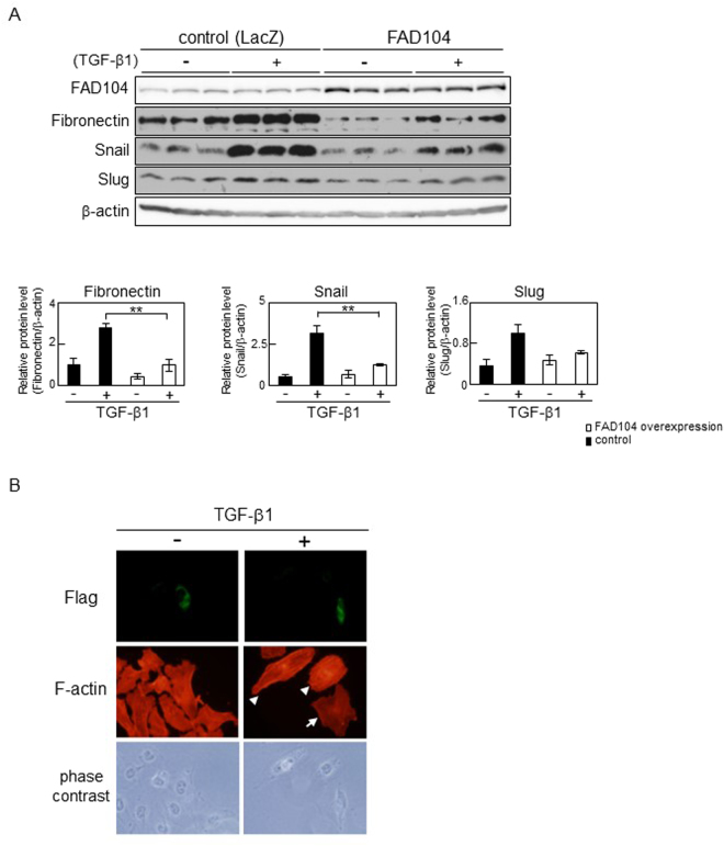 FAD104 overexpression attenuates TGF-β–mediated EMT in HeLa cells. ( A ) The effect of FAD104 overexpression on the expression level of EMT-related genes. HeLa cells were infected with FAD104 or LacZ, and treated with 1 ng/mL TGF-β1 for 72 h. Whole-cell lysates were subjected to Western blot analysis and β-actin was used as a loading control. Signal intensities of the proteins were quantified using NIH-Image software. Each column represents the mean with standard deviation (n = 3). Significant differences are indicated as ** p