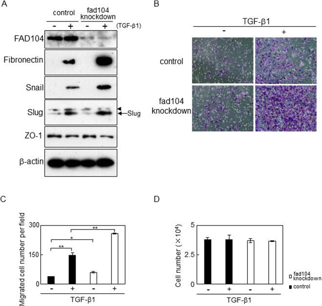 Knockdown of fad104 expression enhances the migration of HeLa cells undergoing TGF-β–mediated EMT. HeLa cells were transfected with siRNA targeting fad104 (sifad104-A) and treated with 1 ng/mL TGF-β1 for 72 h. ( A ) Whole-cell lysates prepared from HeLa cells undergoing EMT were subjected to Western blot analysis. β-Actin was used as a loading control. Arrowhead shows nonspecific bands. ( B ) Cells undergoing EMT were plated in the upper chamber of the filters coated with fibronectin. Cells that migrated to the underside of the transwell insert were measured after 24 h. Representative images of migrated cells were shown. ( C ) The mean number of migrated cells in the field was calculated. Each column represents the mean with standard deviation (n = 5). ( D ) Cells undergoing EMT were plated in culture plates. After 24 h, cells were trypsinized and counted. Each column represents the mean with standard deviation (n = 3). Significant differences are indicated as ** p