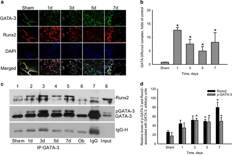 Association of nuclear GATA-3 and Runt-related transcription factor 2 (Runx2) during bone healing. Male ICR mice were anesthetized, and a metaphyseal bone defect was created in the left proximal femurs. The right femurs were treated as the sham-operated group. At 1, 3, 5, and 7 days after surgery, the femurs were collected and cleaned. The expression of GATA-3 (green signals) and Runx2 (red signals) in the bone defect sites were analyzed using confocal microscopy ( a ). Nuclei were stained with DAPI (blue signals). The association of nuclear GATA-3 and Runx2 (white signals) was observed, quantified and statistically analyzed ( b ). The complex of GATA-3 associated with Runx2 was immunoprecipitated (IP) using an antibody against GATA-3, electrophoretically separated, and finally immunodetected using a Runx2 antibody ( c , top panel). Levels of GATA-3 and phosphorylated (p)GATA-3 were immunodetected (middle panel). The amount of IgG heavy chains (IgG-H) was determined as the internal standard (bottom panel). The association of GATA-3 and Runx2 in MC3T3-E1 osteoblasts (Ob) was assayed as the positive control. These protein bands were quantified and statistically analyzed ( d ). Each value represents the mean±s.e.m. for n =4. * Values significantly differ from the respective control group, P