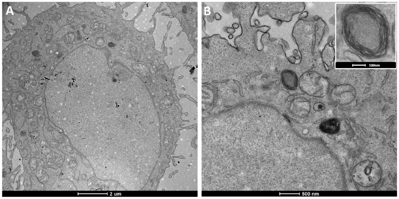 TEM ultrathin sections of HeLa cells after 12 h incubation with fluorescent magnetopolymersomes (PBD(1200)- b -PEO(600), 10% SPION, 5% DEAC). ( A ) Overview of a typical preparation showing few polymersomes as dark spherical objects and ( B ) peripheral cell region with a rare observation of an internalized magnetopolymersome. The inset depicts a close-up of a multilamellar magnetopolymersome judged from contrast and membrane thickness.