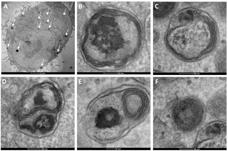 TEM ultrathin sections of HeLa cells after 12 h incubation with cationic fluorescent magnetopolymersomes. Vesicles (50% PBD- b -PEO-COOH; 2% DEAC) containing 10% w/w SPION were formed at 2 mg/mL via solvent inversion and subsequently coated in 10× b -PEI(800) before being purified by gel permeation chromatography. Overview in ( A ) shows elevated levels of cationically modified magnetopolymersomes taken up (black spots indicated by arrows). The sequence ( B – F ) shows higher magnification images of the apparent progression of hydrolytic degradation of SPION-loaded polymersomes after internalization.