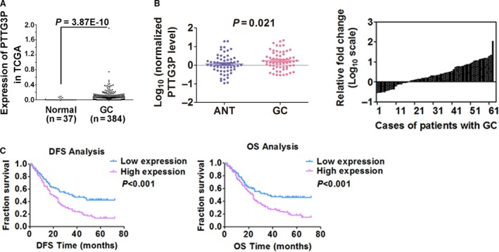 PTTG3P is up‐regulated in GC tissues and is correlated with patient prognosis. ( A ) PTTG3P expression was evaluated using TCGA RNA‐seq data and compared between GC tissues and normal tissues. ( B ) The expression of PTTG3P in adjacent non‐tumour (ANT) and GC tissues was determined by qRT–PCR. β‐actin was used as an endogenous control to normalize the data. ( C ) Kaplan–Meier curves for DFS and OS of patients with GC based on PTTG3P expression.