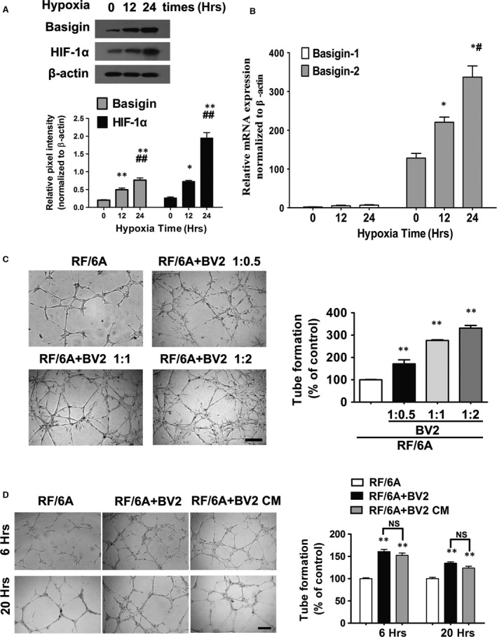 Hypoxia up‐regulate basigin and HIF‐1α a expression in BV2 in vitro after 12, 24 hrs of treatment compared with untreated controls. Quantitative analysis of the expression of basigin and HIF‐1α by Western blotting under hypoxia after 12 or 24 hrs, with 0 hr as the baseline ( A ) and real‐time PCR analysis of the expression of basigin isoforms ( B ) in hypoxic BV2 cells ( n = 3). CT values in real‐time PCR analysis (basigin‐1 30.91 ± 1.80, basigin‐2 19.92 ± 0.76, β‐actin 12.56 ± 0.85) confirmed basigin‐1 expression was low. * P