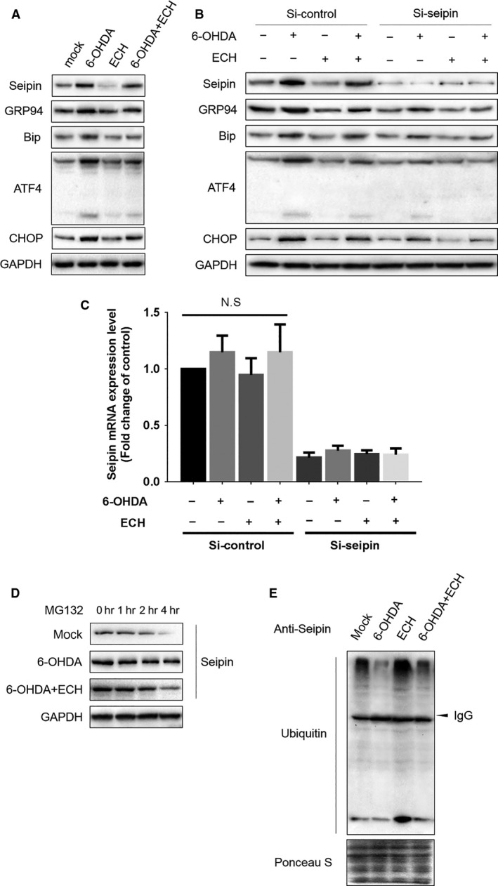 ECH protected PC1 2 from 6‐OHDA‐induced ERS through promoting seipin ubiquitination and degradation. ( A ) ECH down‐regulated seipin and ERS‐associated protein expression induced by 6‐OHDA. Seipin, GRP94, Bip, ATF‐4, CHOP, GAPDH protein expression levels detected by Western blotting in groups treated with different conditions ( n = 3, 40 μg protein each lane). ( B ) Knocking down seipin by siRNA attenuated ERS‐associated protein accumulation induced by 6‐OHDA. Seipin, GRP94, Bip, ATF‐4, CHOP, GAPDH protein expression levels detected by Western blotting in groups treated with different conditions ( n = 3, 40 μg protein each lane). SiRNA, 50 nM each group transfected and collected to obtain protein lysis after 48 hrs. ( C ) The relative mRNA levels of seipin were determined using RT‐PCR. The results of RT‐PCR were normalized to GAPDH and expressed as fold change to control. SiRNA of seipin dramatically inhibited mRNA levels of seipin ( P