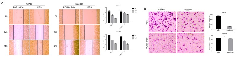 Antitumor activity of <t>ROR1-cFab</t> in ovarian cancer cells (A) Wound healing assay. Tumor cells were grown and treated with 40 μg/mL of ROR1-cFab for up to 48 h and then subjected to wound healing assay. (B) Transwell migration assay. Tumor cells were grown and treated with 40 μg/mL of ROR1-cFab for up to 24h and then subjected to Transwell migration assay. Data are shown as mean ± SD (n = 3, NS, not significant, * p