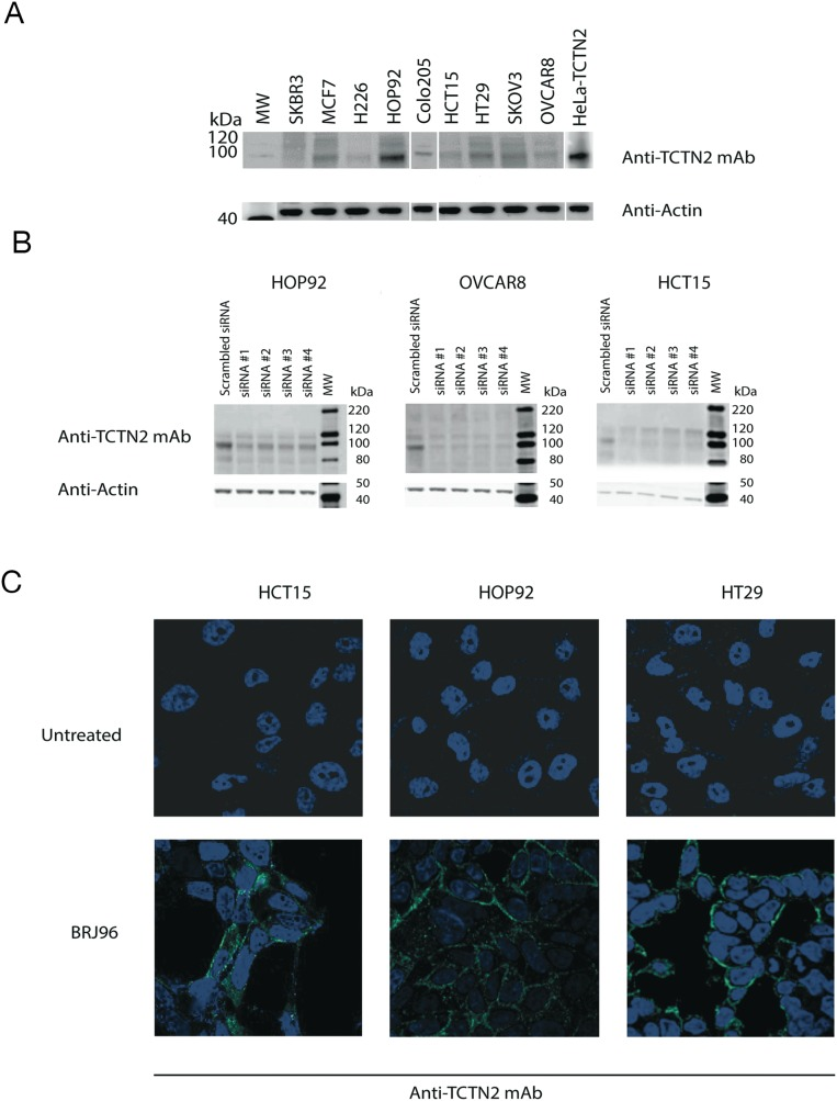 TCTN2 is expressed in cancer cell lines and localizes in the inner side of plasma membrane (A) Total proteins were extracted from breast (SKBR3 and MCF7), lung (H226 and HOP92), colon (HCT15, HT29 and Colo205) and ovarian (SKOV3 and OVCAR8) cancer cell lines. Proteins were resolved by SDS-polyacrylamide gel electrophoresis and analyzed by Western blot with anti-TCTN2 monoclonal antibody. Anti-β-Actin monoclonal antibody was used as a loading control. (B) TCTN2 was silenced in HOP92, OVCAR8 and HCT15 cancer cell lines with four commercially available (QIAGEN) TCTN2-specific siRNAs at 10 nM concentration or irrelevant siRNA (AllStars Negative Control siRNA, QIAGEN) using the Hi-Perfect transfection reagent (QIAGEN). TCTN2 expression was assayed 48 hours later by Western blot. Anti-β-Actin monoclonal antibody was used as a loading control. (C) TCTN2 localizes in the inner side of plasma membrane in cancer cells lines. HCT15, HOP92 and HT29 cells were analyzed by confocal microscopy. Cells were incubated with the anti-TCTN2 monoclonal antibody, with (lower panels) or without (upper panels) permeabilization pre-treatment with 0.01% BriJ96 ® . Cells were subsequently stained with Alexafluor 488-labeled goat anti-mouse antibodies to detect TCTN2 (green) and DAPI to visualize nuclei (blue).